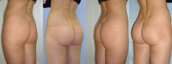 Фото до и после подтяжки ягодиц