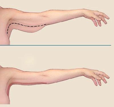 Хирургическая подтяжка кожи рук
