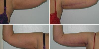шрамы после брахиопластики