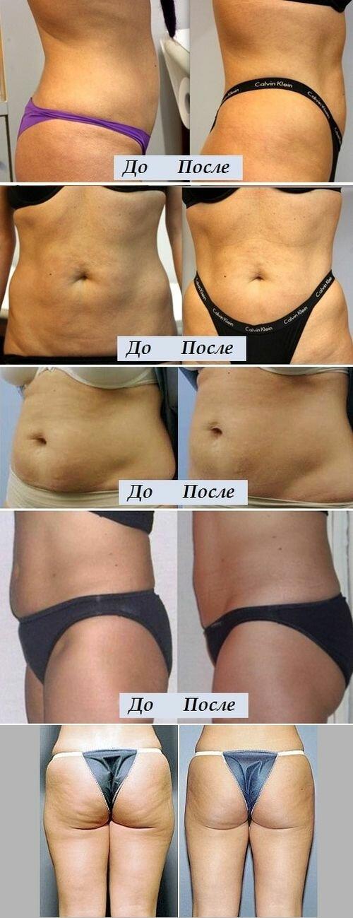 Фото до и после процедуры Aqualyx