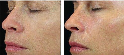 Фото до и после LPG-массажа лица