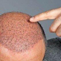 волосы после трансплантации