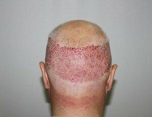 трансплантация волос с затылка