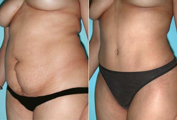 Фото до и после миниабдоминопластики