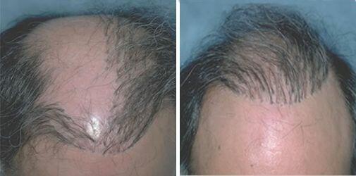 пересадка волос, которые теперь растут одиночными пучками.