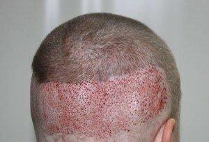 трансплантации волос