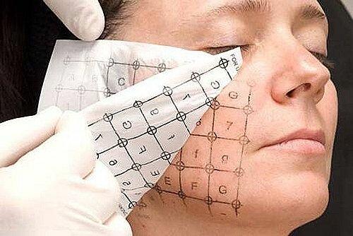 косметологическая процедура термаж