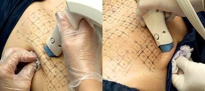 процедура термаж на тело