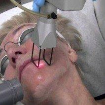 Процедура очищения кожи лазером