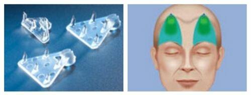 эндотины для подтяжки и фиксации тканей области лба