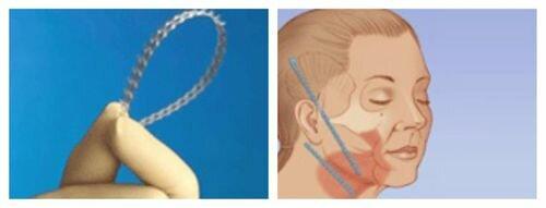 протезы для подтяжки области второго подбородка и шеи