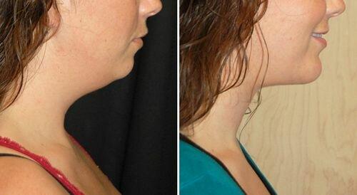 >Фото до и после применения эндотинов