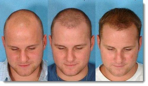 Фото до и после пересадки волос