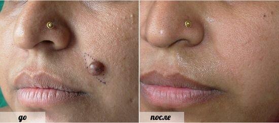 Фото до и после удаления бородавок лазером