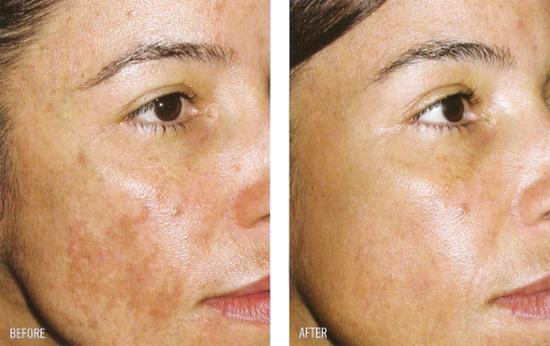 Фото до и после удаления пигментации кожи лазером