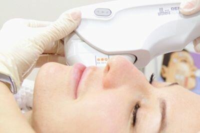 Круговая подтяжка лица Ulthera System