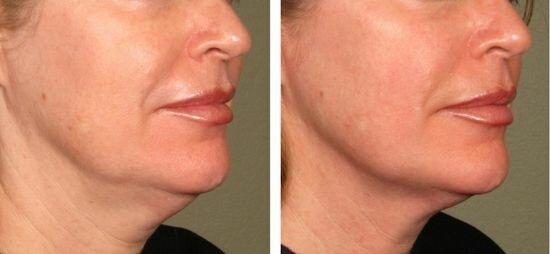 Фото до и после лифтинга Ulthera System