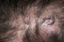 рубцовая атрофия волосистой части головы