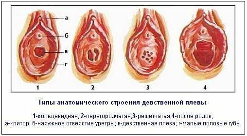 типы анатомического строения девственной плевы