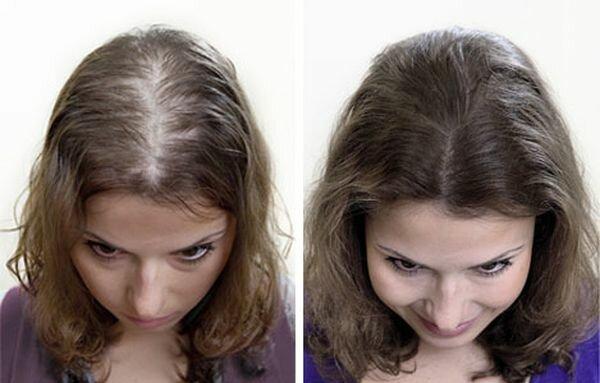 фото до и после трансплантации волос