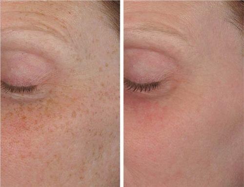 Фото до и после удаления пигментных пятен