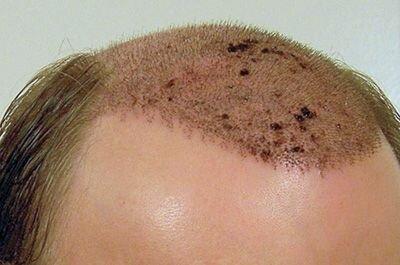 уход за пересаженными волосами
