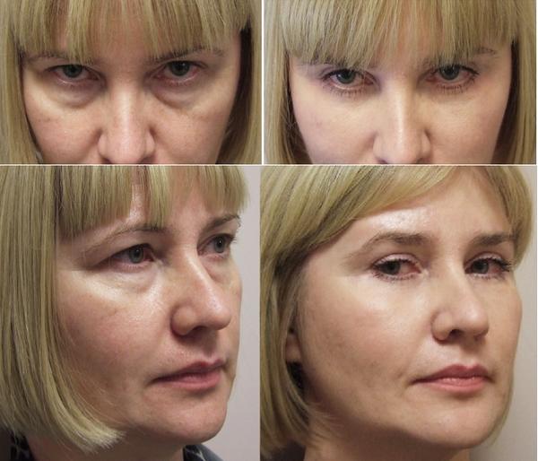 Фото до и после чек-лифтинга