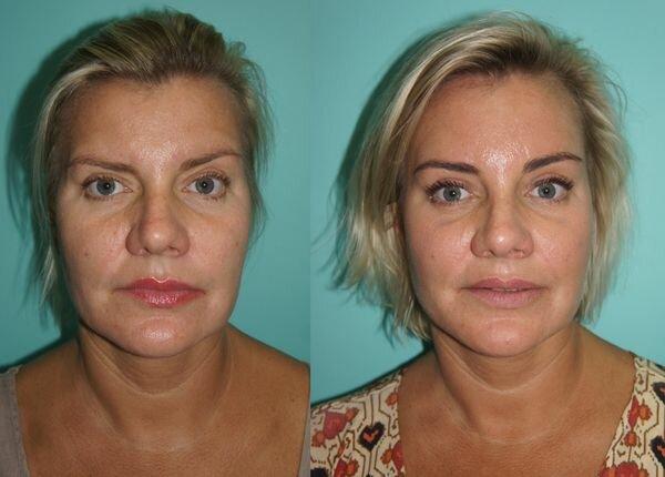 Фото до и после нитевого лифтинга