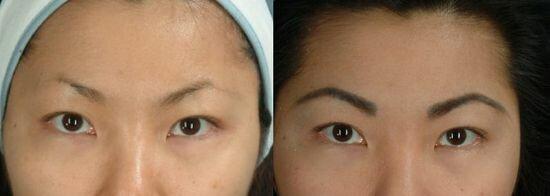 фото до и после пересадки бровей