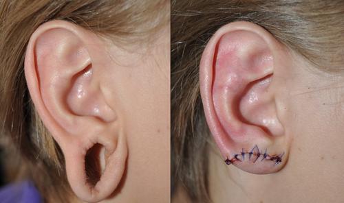 Фото до и после пластики мочки уха