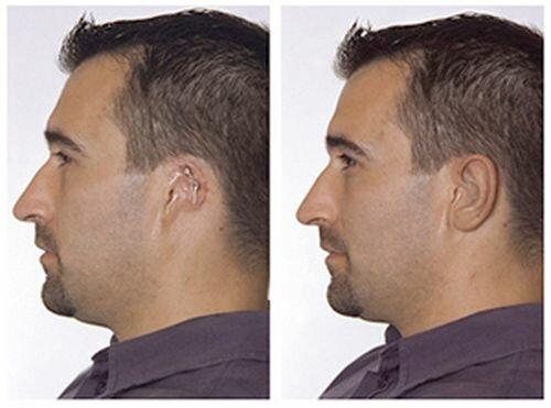 фото до и после коррекции уха