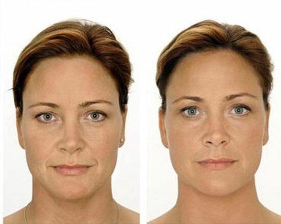 Фото до и после применения perlane