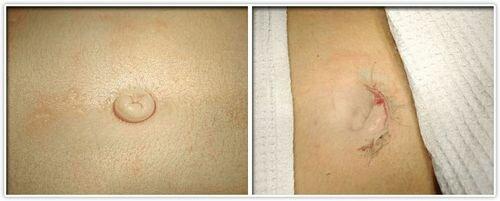 Фото до и после выполнения умбиликопластики