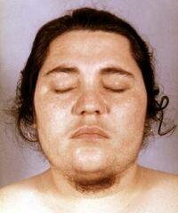 Экзогенный гирсутизм