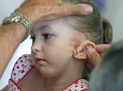 искусственная ушная раковина