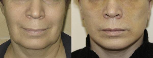 Фото до и после SMAS лифтинга