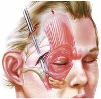 нехирургическая SMAS подтяжка лица
