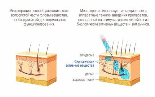 принцип действия мезотерапии