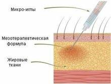 воздействие на кожу головы мезотерапии микроиглами
