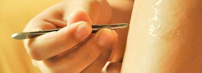 удаление волос на ногах пинцетом