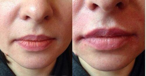 HAfiller – фото до и после