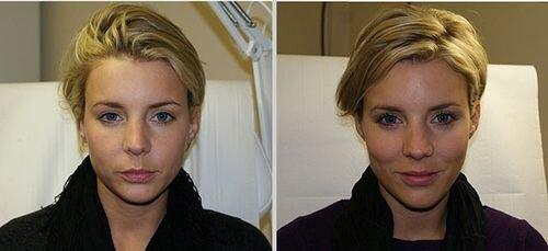 фото до и после применения Филлера Перфекта Дерм