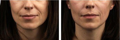 фото до и после применения филлера