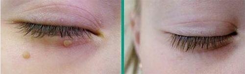 фото до и после электрокоагуляции родинок