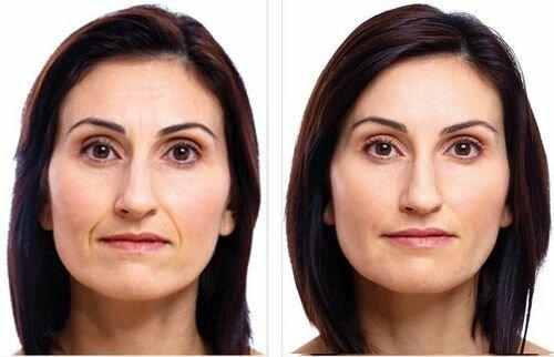 Фото до и после применения препаратов Стилаж