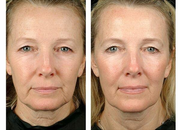 Сурджидерм фото до и после