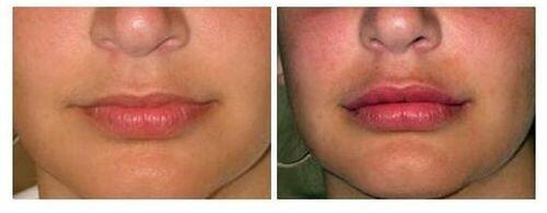 Фото до и после применения Гиалуформа