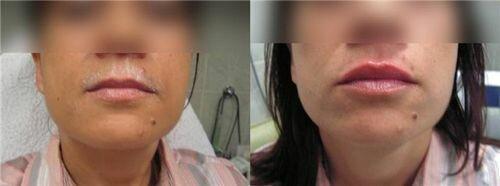 фото до и после введения Глайтон