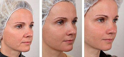 фото до и после применения IAL-system