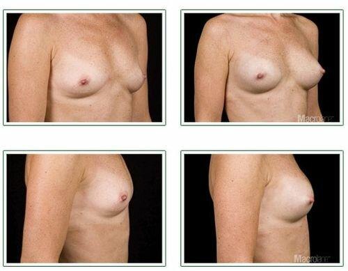 фото д и после введения препарата Макролайн